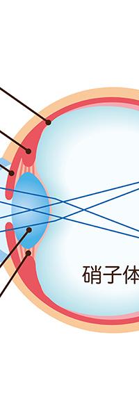 硝子体の手術